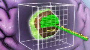 pencil-beam-scanning-illustration