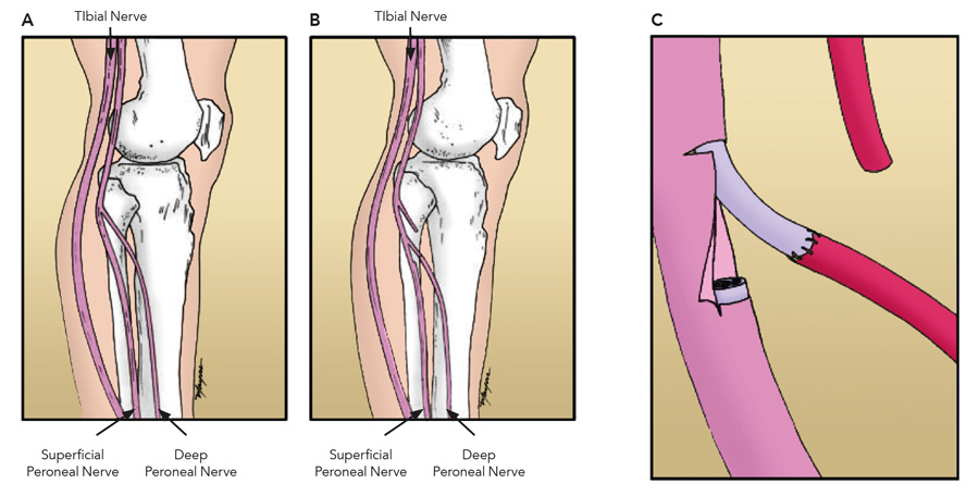 Peroneal or tibial nerve transfer operation makes strides for